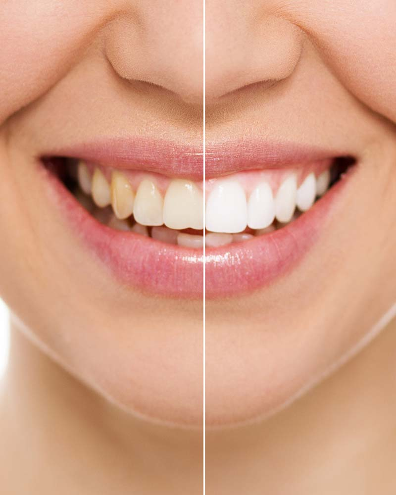 Teeth whitenining in west sussex