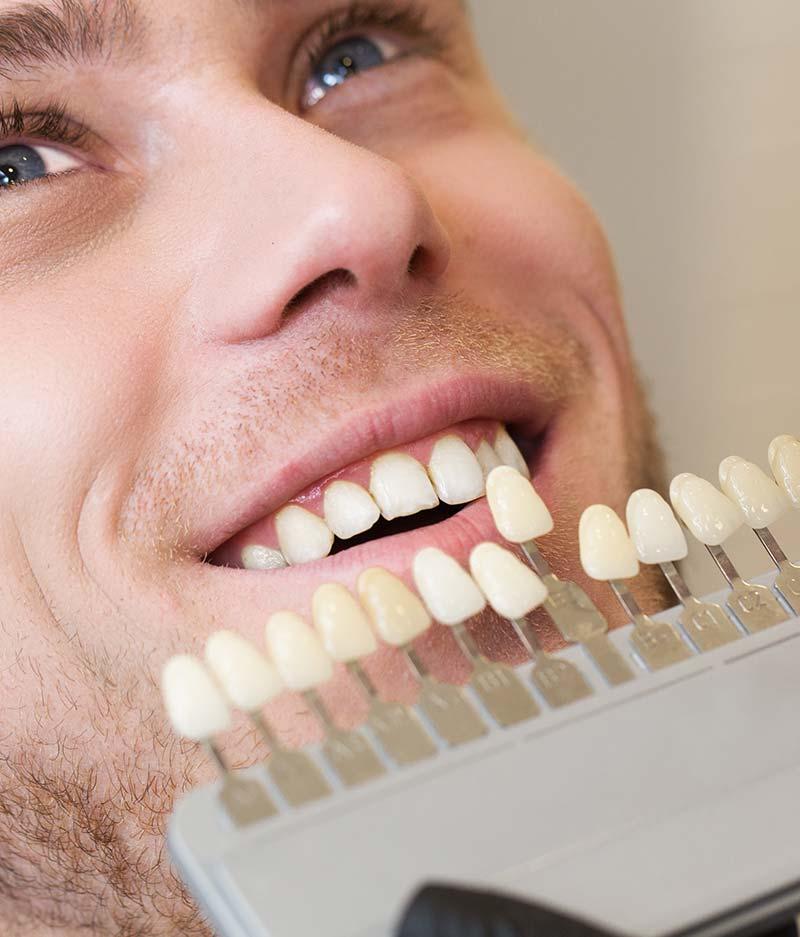 Restorative dentistry - veneers