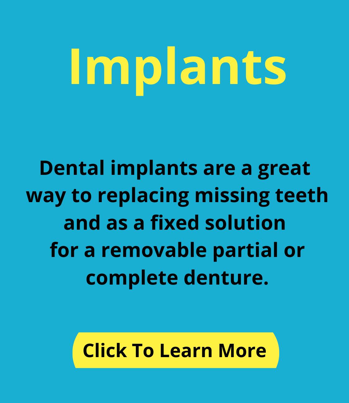 Dental Impants