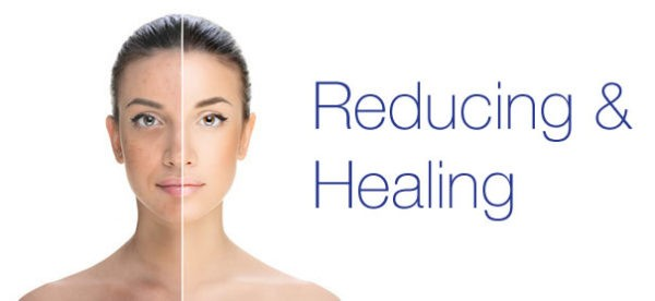 reduce and heal acne with Smooth Skin Health Centre