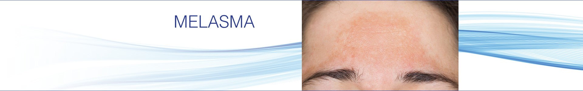 Melasma - Smooth Skin Health Centre Hamilton