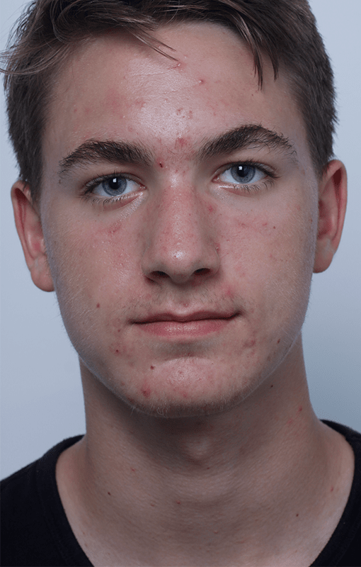 After Smooth Skin Acne Treatments