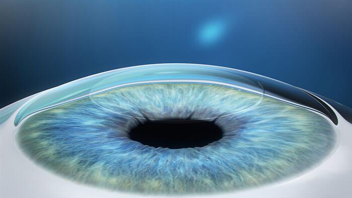 Laser Eye Surgery Near Me