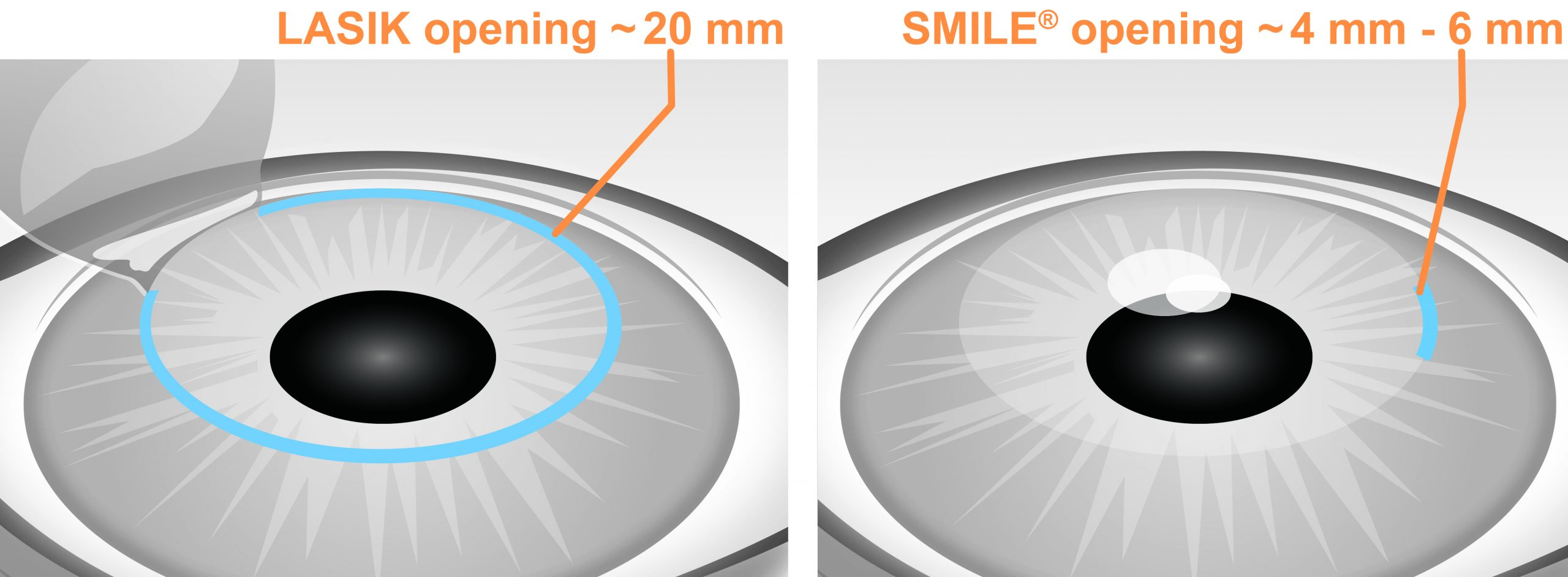 Smile Laser Eye Surgery Near Me