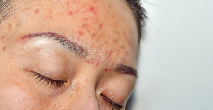 Chemical Peels: The Very Best in Acne Treatments
