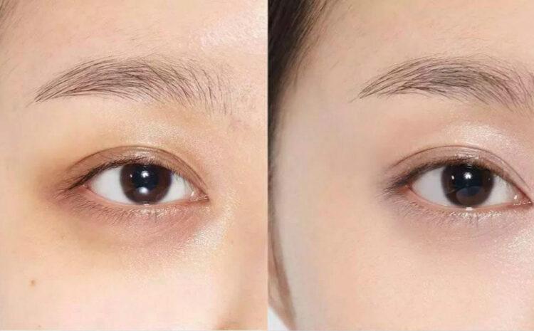 黑眼圈是如何导致的? 黑眼圈的类型和科学的医美治疗方法