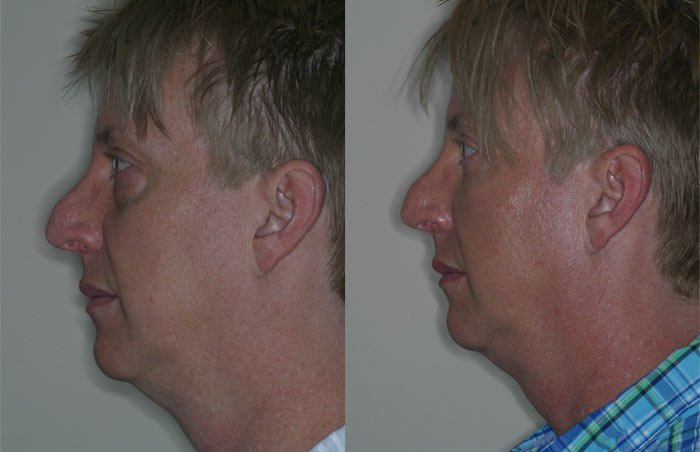 before-and-after-BLEPHAROPLASTY