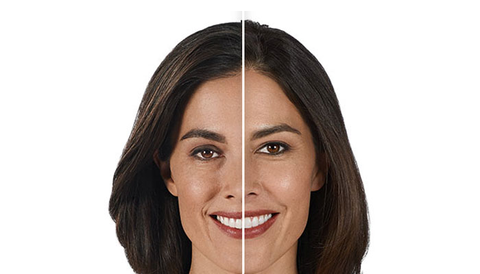 juvederm-after-and-before
