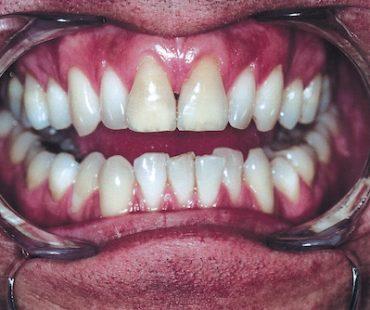 stockvault-teeth114744