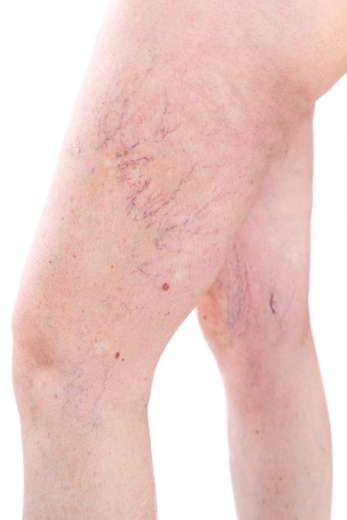 Sclerotherapy: