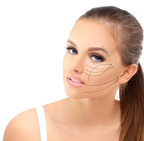 An Ultherapy® facial treament grid pre procedure