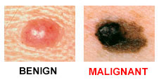 skin cancer warning signs of two moles