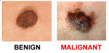 Color difference in benign and malignant moles