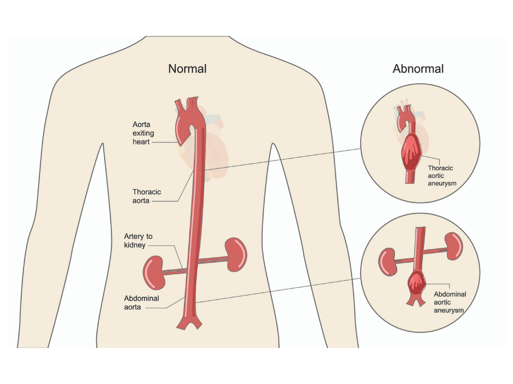 Normal Aorta vs. Aortic Aneurysm