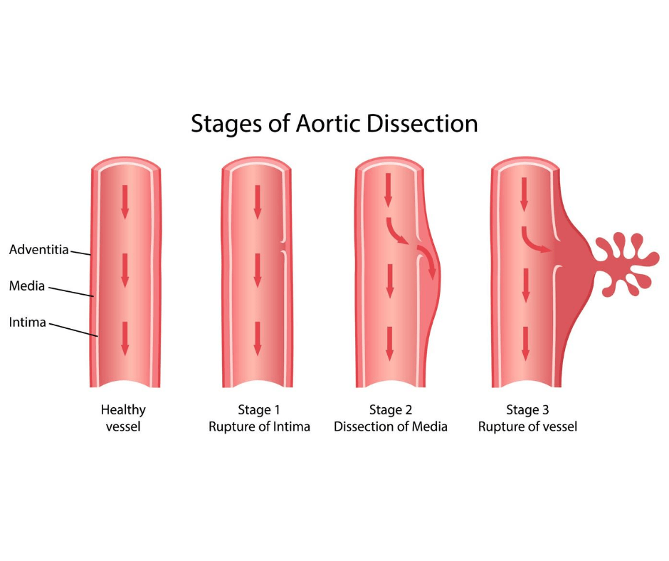 Stages of Aortic Dissection