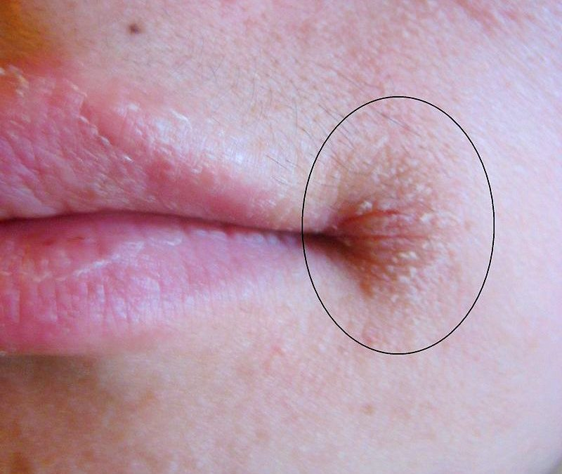 Can B2, Iron and/or Zinc Deficiency Cause Cracks at the Corners of the Mouth?