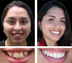 before-after-teeth