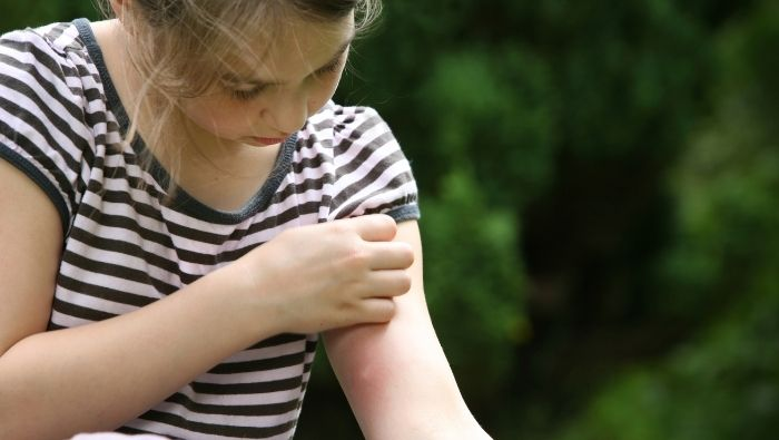 Natural Home Remedies for Mosquito Bites photo