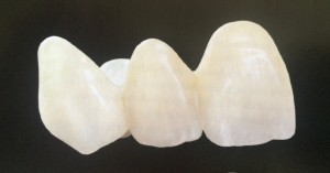 Ultra Translucent Zirconia