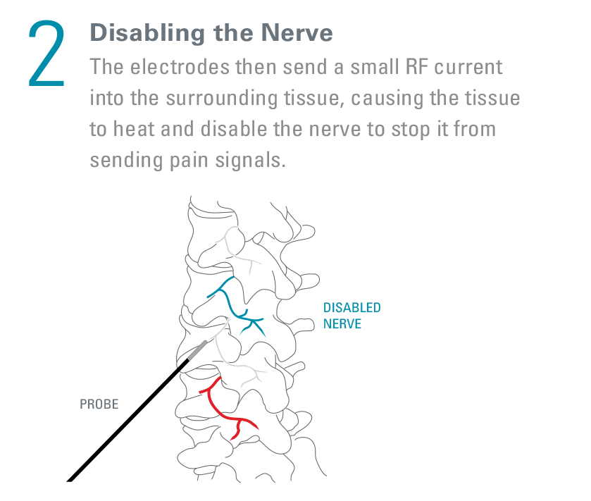 what_happens_2_Disabling The nerve