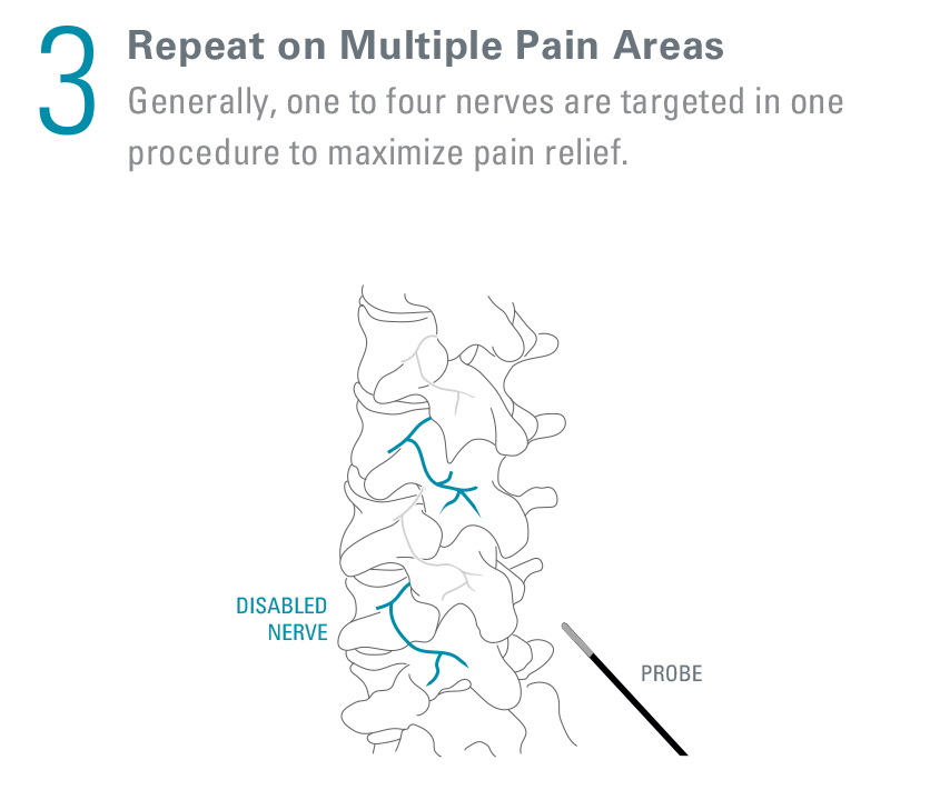 what_happens_3_repeat multiple pain