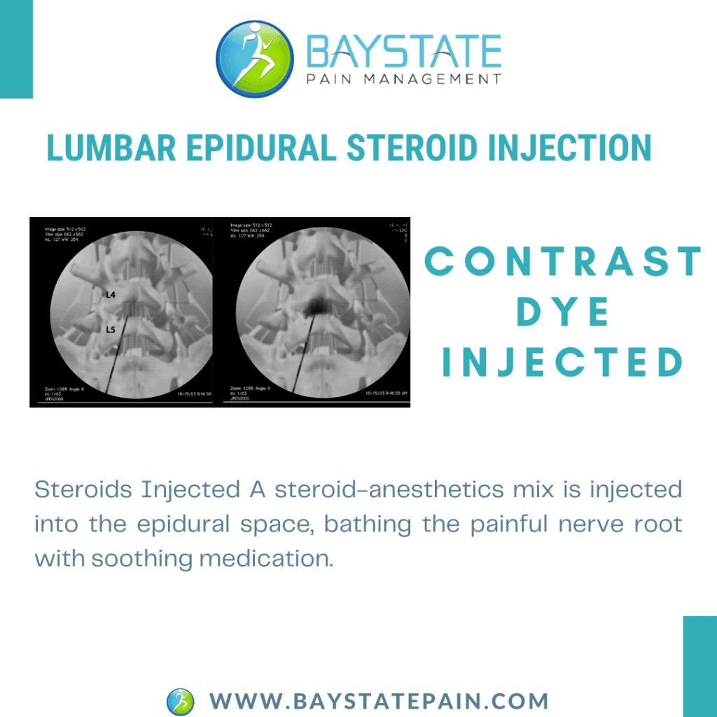 lumbar epidural