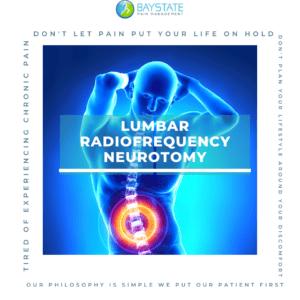 Lumbar Radiofrequency Neurotomy
