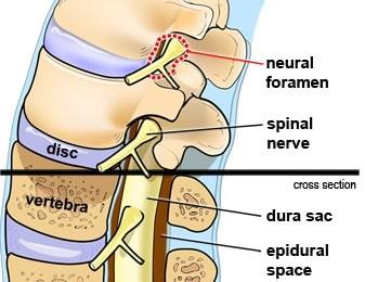Epidural steroid injection (ESI)1