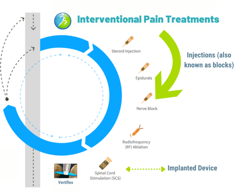 Interventional treatments