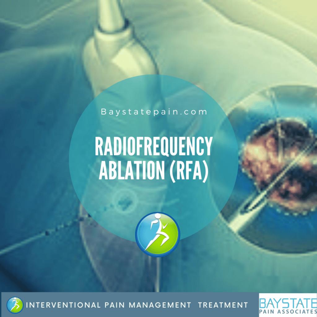 Radiofrequency ablation (RFA)