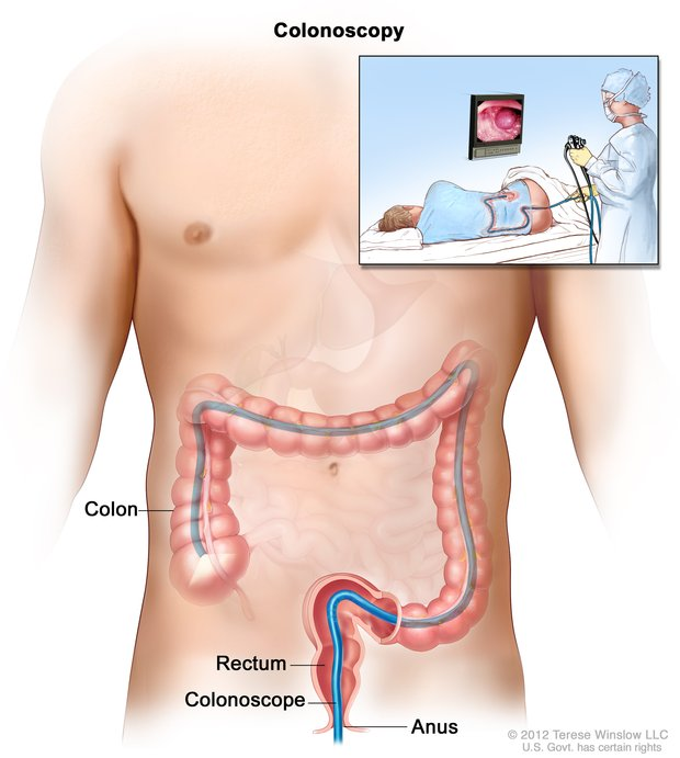 image of colonoscopy
