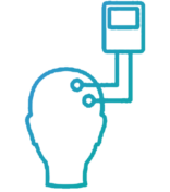 Surgical Neuromonitoring Associates EEG Monitoring Surgimon