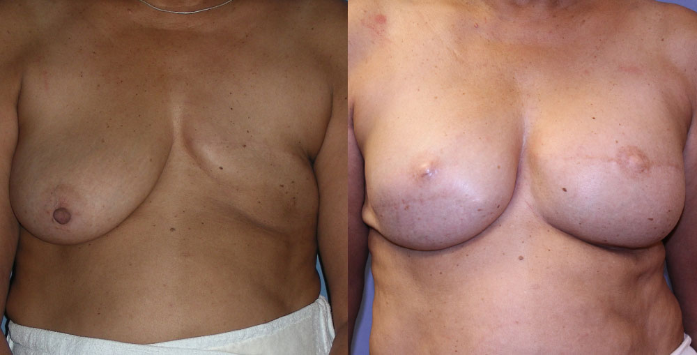Breast Reconstruction Patient #1 | Spectrum Plastic Surgery