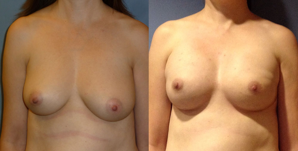 Breast Reconstruction Patient #2 | Spectrum Plastic Surgery