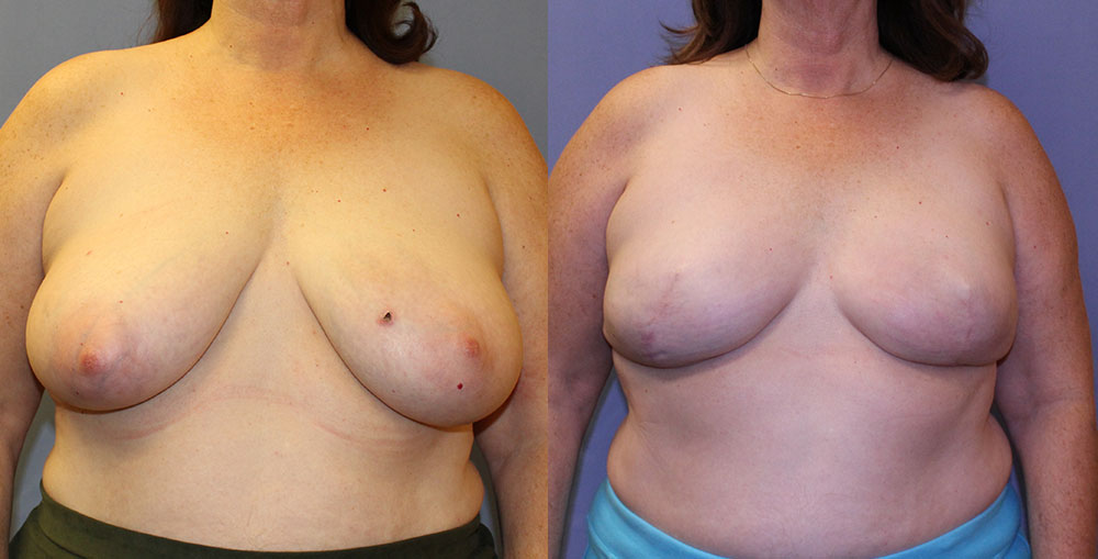 Breast Reconstruction Patient #3 | Spectrum Plastic Surgery