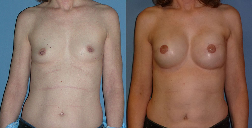 Breast Reconstruction Patient #4 | Spectrum Plastic Surgery