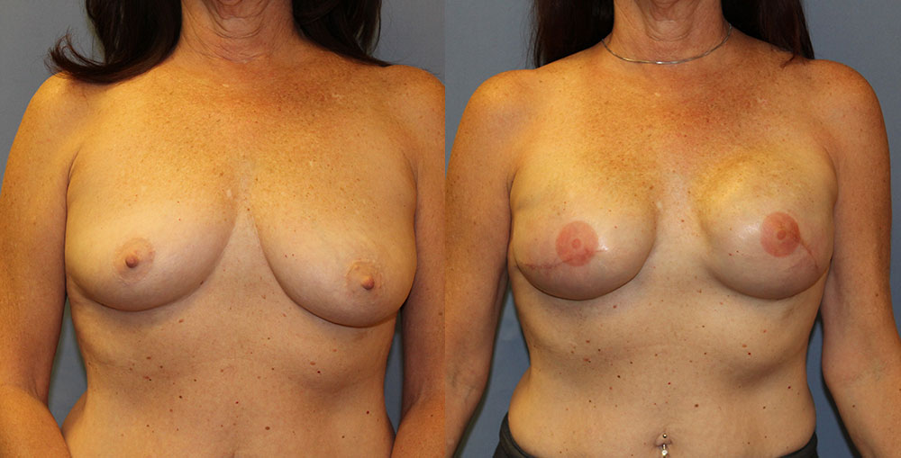 Breast Reconstruction Patient #5 | Spectrum Plastic Surgery