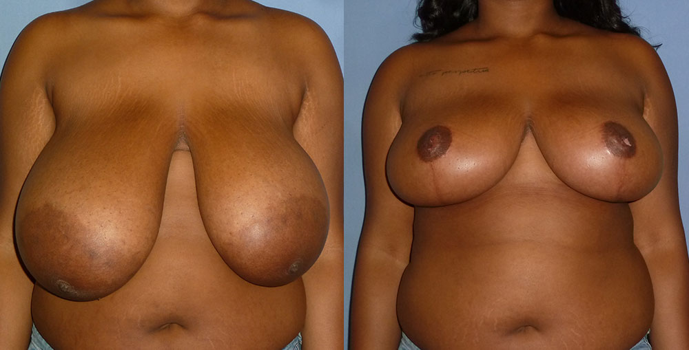 Breast Reduction Patient #1 | Spectrum Plastic Surgery