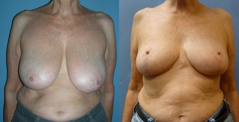 Breast Reduction Patient #3 | Spectrum Plastic Surgery