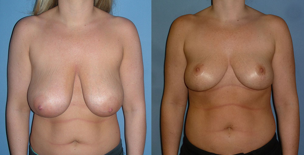 Breast Reduction Patient #4 | Spectrum Plastic Surgery