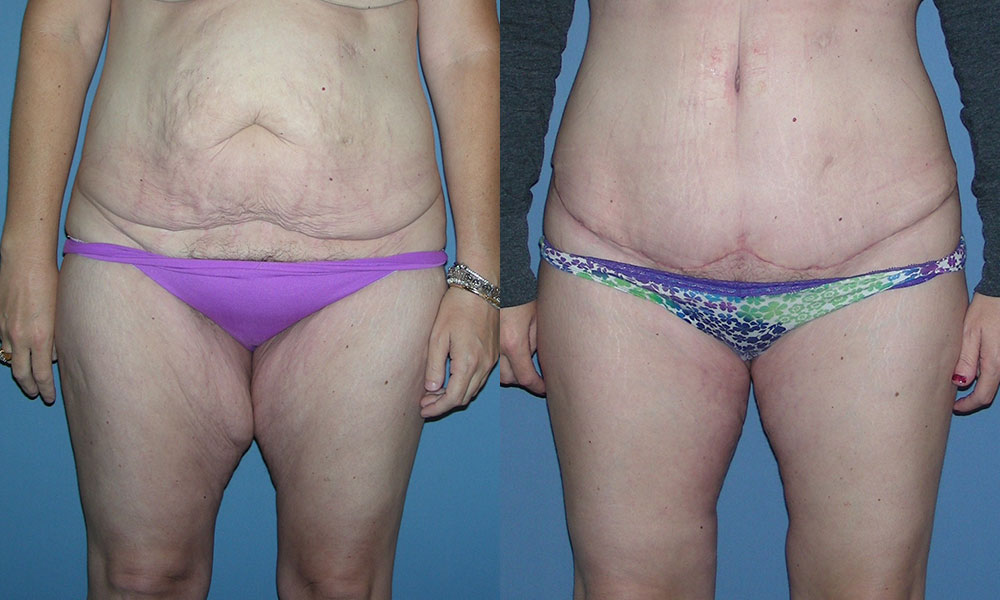 Tummy Tuck with Liposuction Patient #1 | Spectrum Plastic Surgery