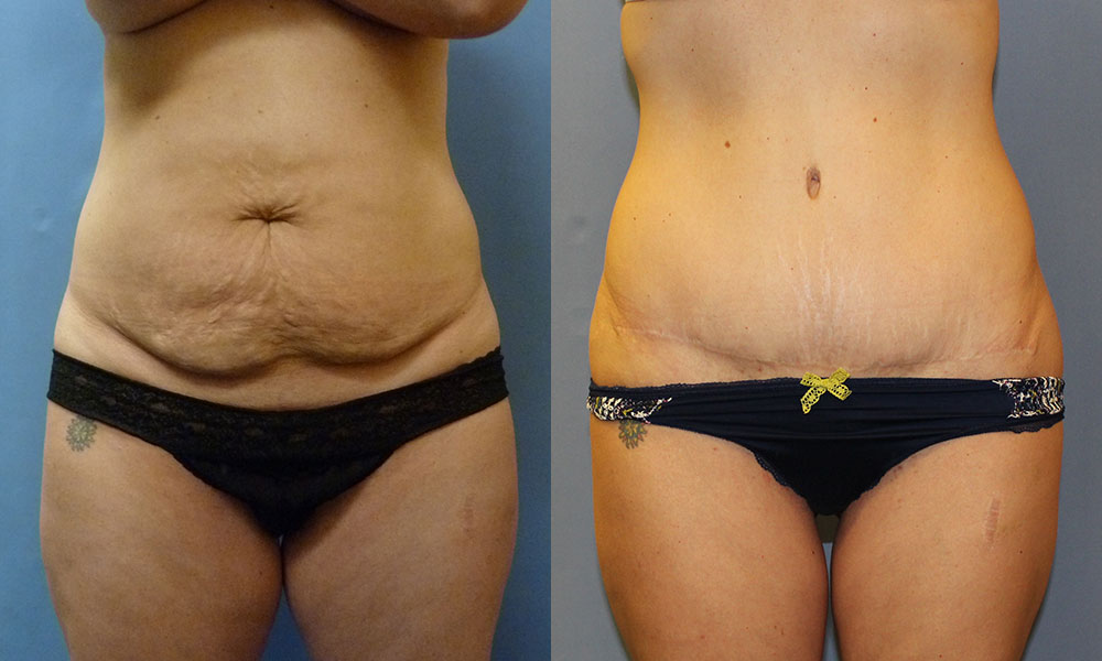 Tummy Tuck with Liposuction Patient #2 | Spectrum Plastic Surgery