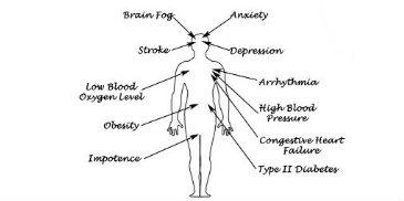 The Dangers of Sleep Apnea