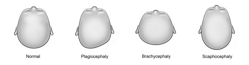 Plagiocephaly Baby Helmet