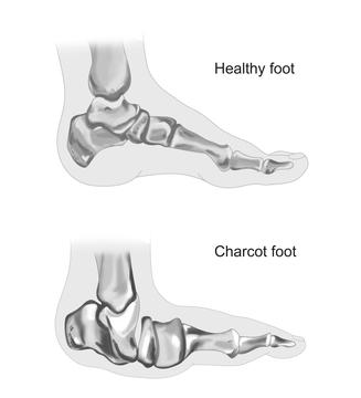 foot charcot