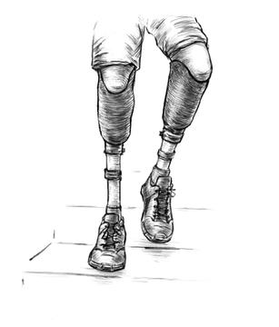 BELOW KNEE PROSTHETIC LEG ON BOTH THE LEGS