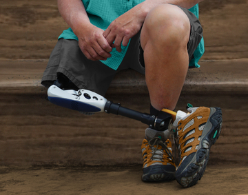 Prosthetic Leg Cost in Naperville IL