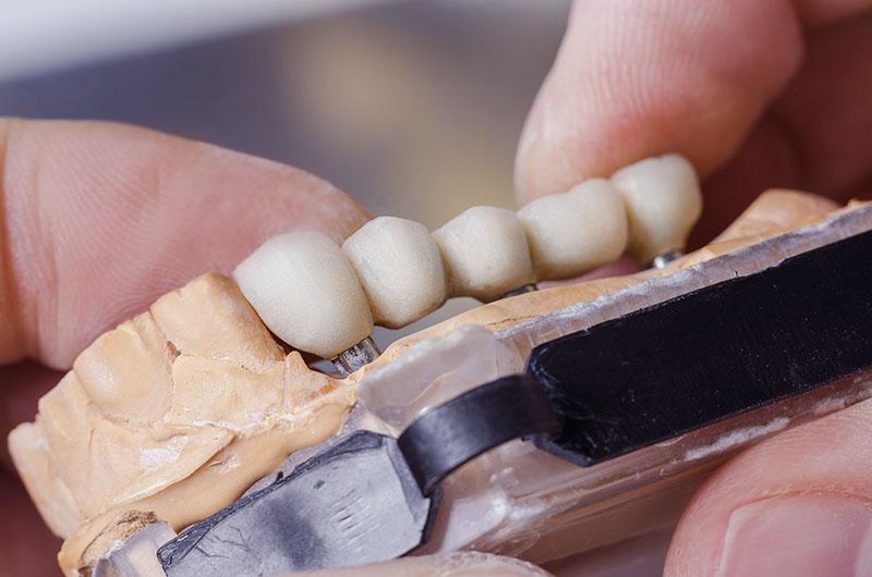 dental technician preparing dental bridge