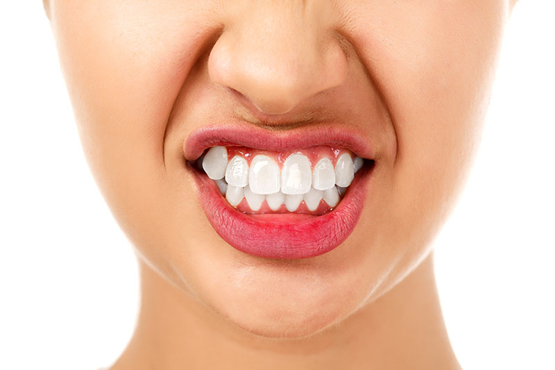 woman with bruxism grinding her teeth