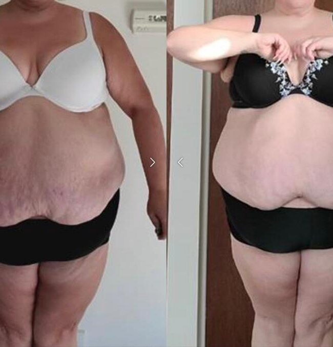 front view of rebecca p's weight loss progress
